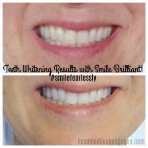 Teeth Whitening Results with Smile Brilliant + Giveaway Ending SOON!